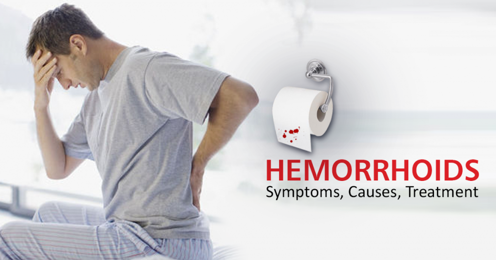 Home Remedies To Get Rid-Of Hemorrhoids