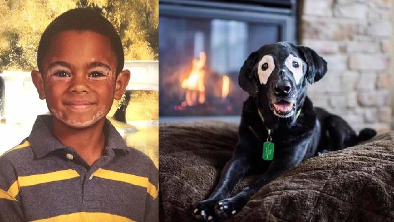 boy and dog suffering from skin disease