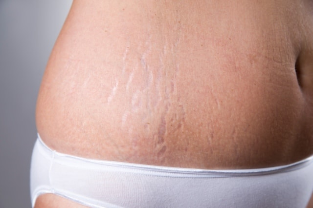 6 Effective Natural Remedies to Remove Stretch Marks